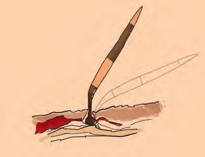 Illustration des Aufbaus eines Igelstachels